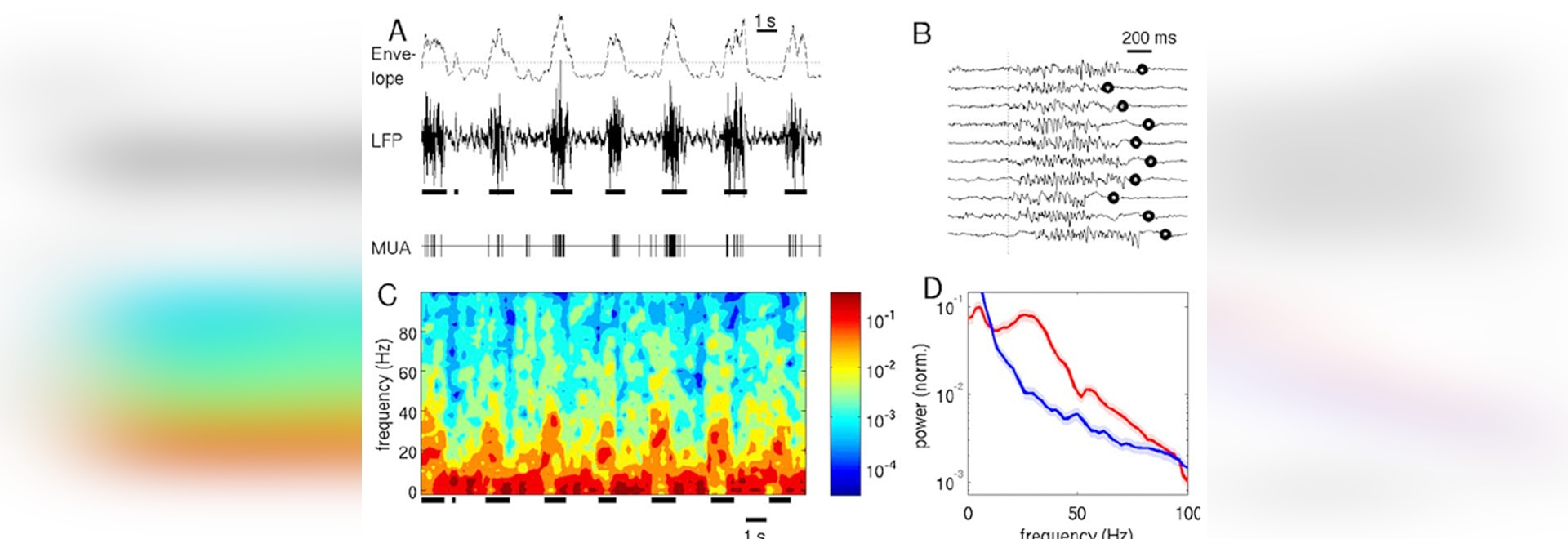 Solución de alta frecuencia del tratamiento de señales del sistema rotatorio
